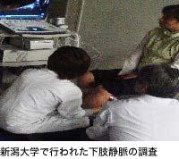 新潟大学で行われた下肢静脈の調査
